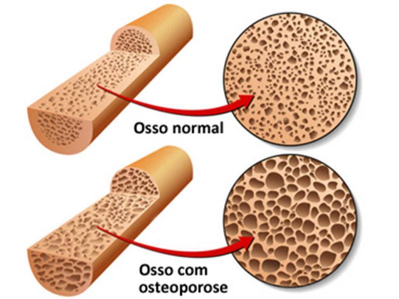 Osteoporose detalhes